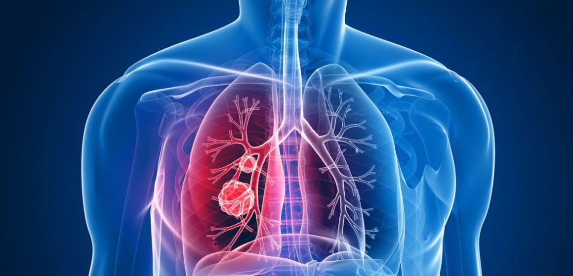 VIDEO | Vom avea un medicament contra cancerului pulmonar
